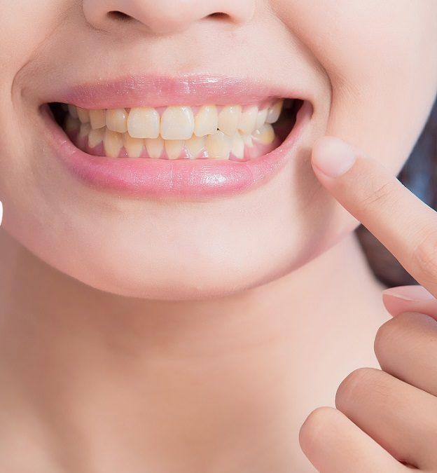 The Problem: Stained Teeth