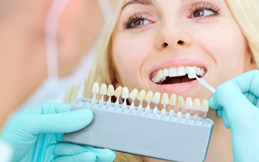 Veneers Vs. Crowns: What You Need to Know