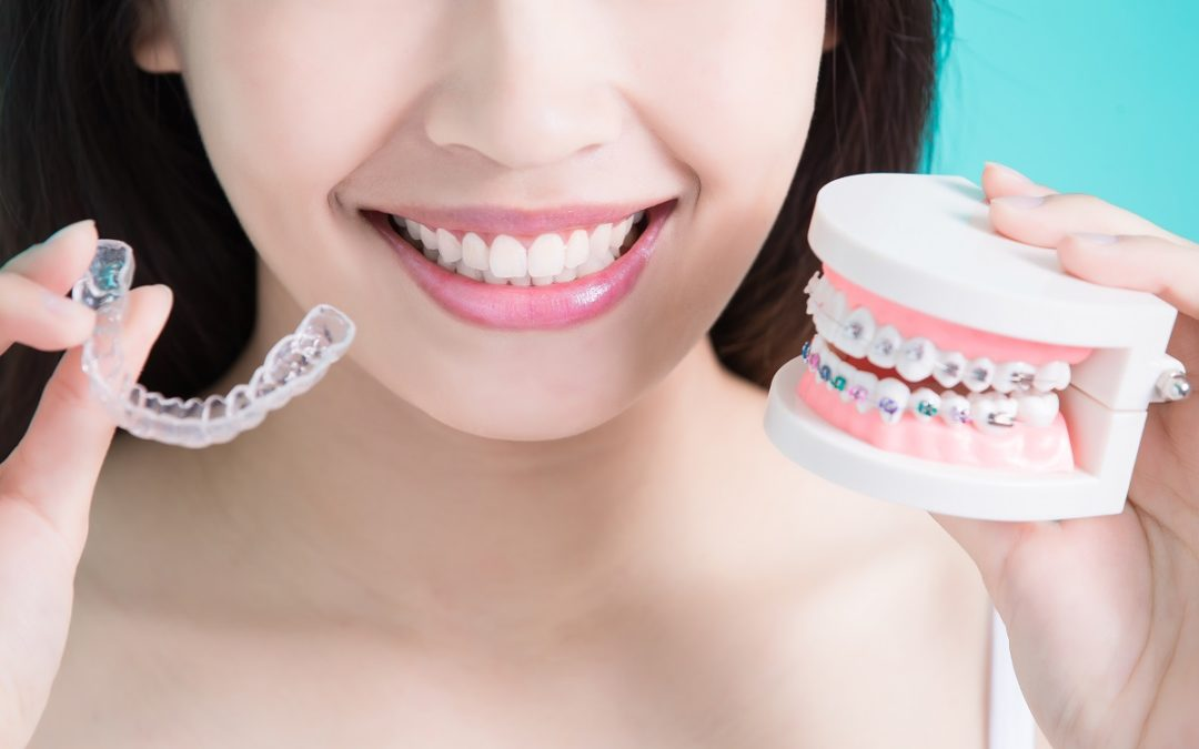 Straightening Smile in SoCal – Braces & Invisalign