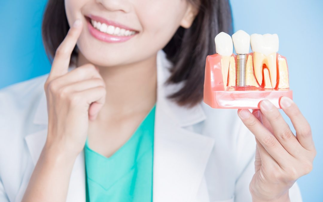 Dental Bridge, Implants, Or Dentures – Which One Is The Best?